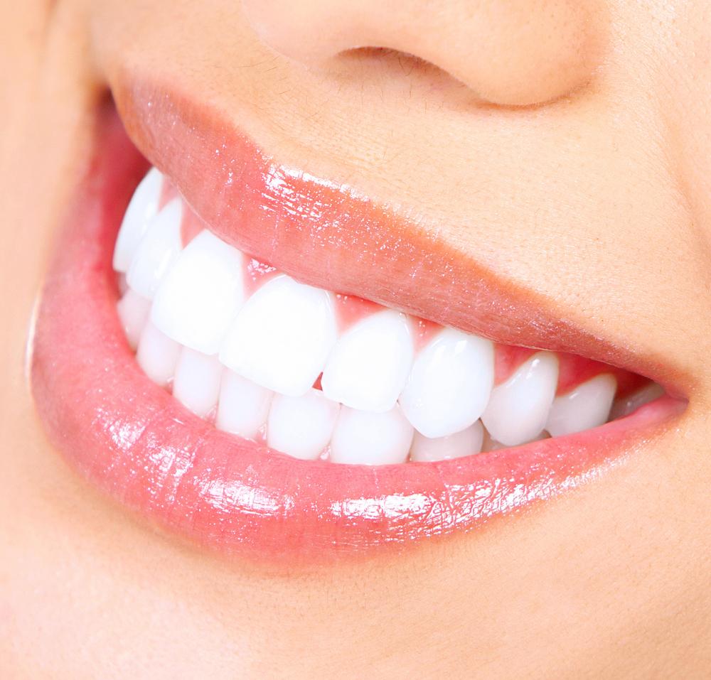 Teeth Whitening Ste Genevieve Mo Family Dentistry Of Ste